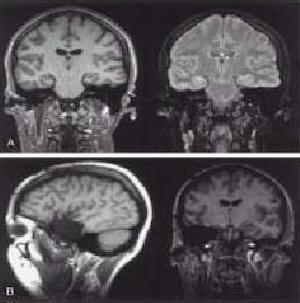 Clínica Especializada En Epilepsia y Sueño - Diagnóstico y tratamiento para la epilepsia